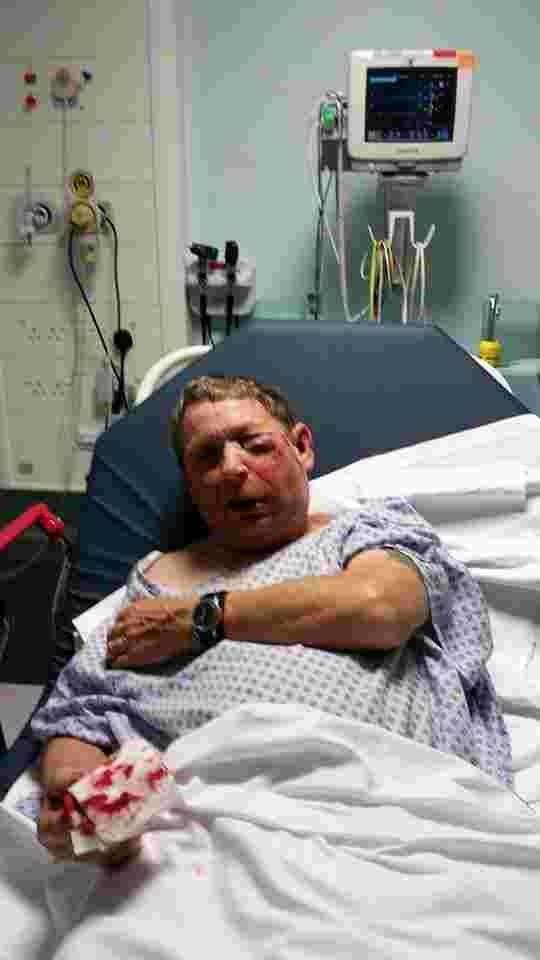 Brutal street attack leaves Dad with serious injuries